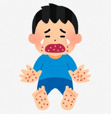手足口病のイメージ画像